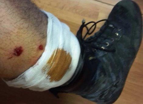 poliziotti-feriti-roma