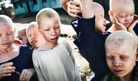 albini