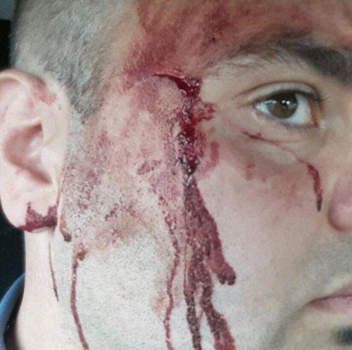 carabiniere-ferito