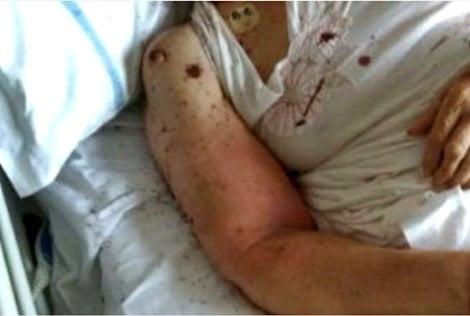 Donna ricoverata in un letto invaso da formiche