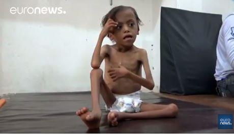 yemen fame
