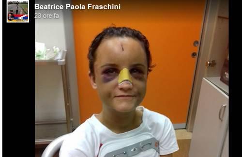 Beatrice Fraschini
