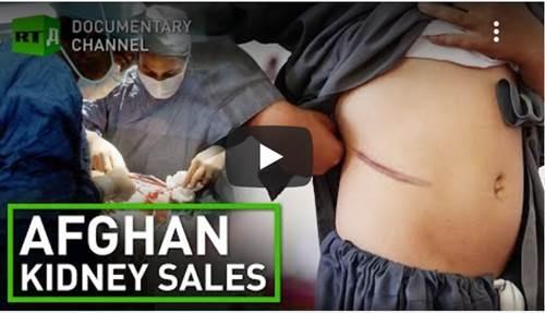 vendita di organi